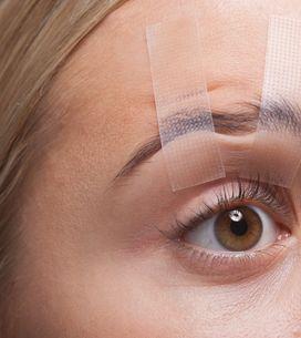 Palpebra cadente: cause e rimedi della ptosi palpebrale