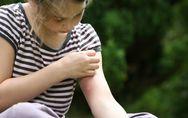 3 prodotti miracolosi per le punture di zanzara