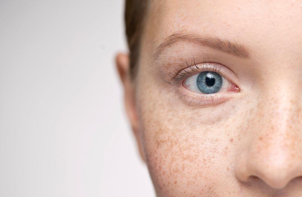 Grani di miglio: come rimuovere le piccole cisti intorno agli occhi