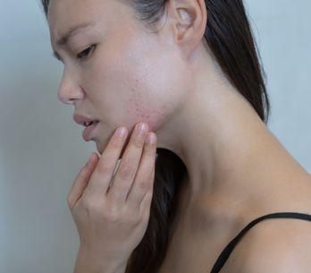 Tout savoir sur l'acné pendant la grossesse