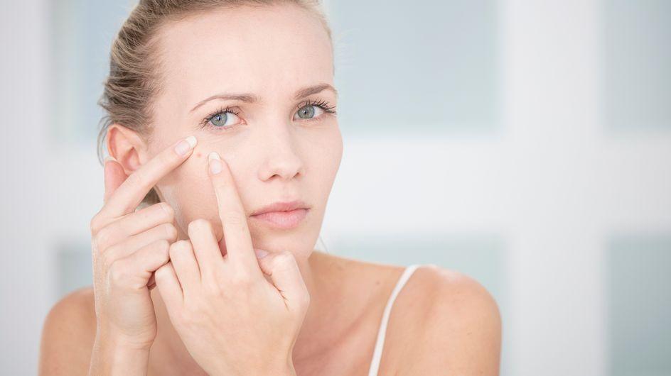 Cicatrices d'acné, comment s'en débarrasser durablement?