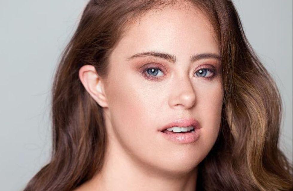 Atteinte de trisomie 21, Chelsea Werner est gymnaste professionnelle et mannequin
