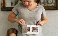 Enceinte, elle apprend qu'elle a deux utérus et qu'elle attend un bébé dans chaq