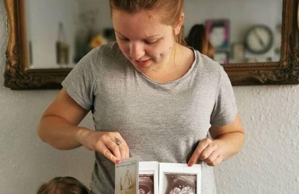 Enceinte, elle apprend qu'elle a deux utérus et qu'elle attend un bébé dans chaque