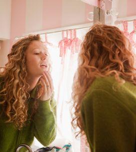 Brufoli sul mento: perché compaiono e come trattarli