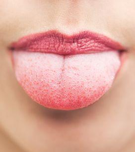 Macchie sulla lingua: quali sono le cause più comuni?
