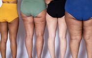 Massaggiatore anticellulite: il tuo alleato contro la buccia d'arancia