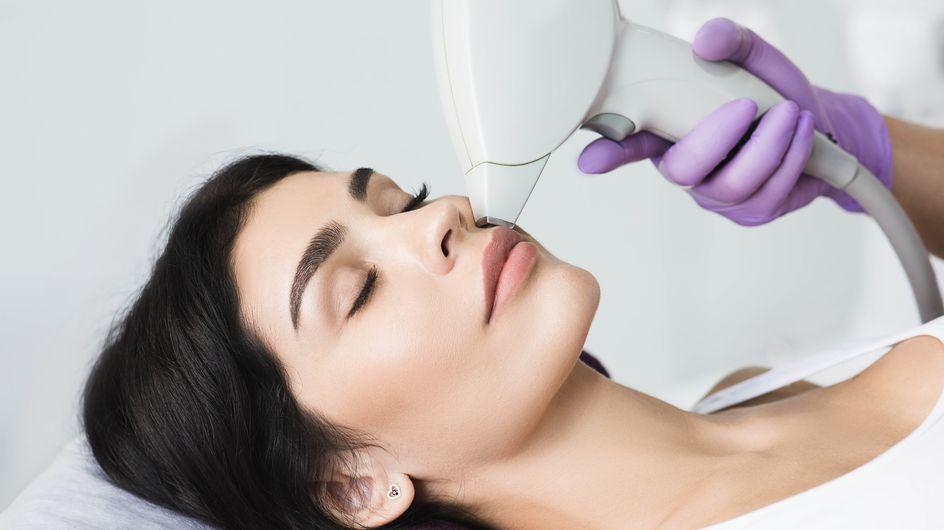Luce pulsata viso: pro e contro di questo metodo di epilazione