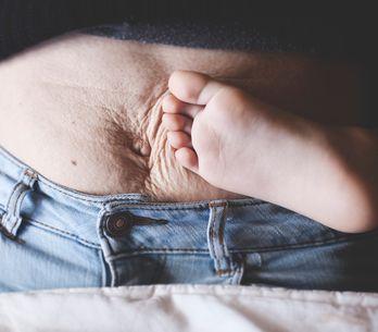 """Ventre après grossesse : """"Retrouver un corps de jeune fille, c'est une illusion"""""""