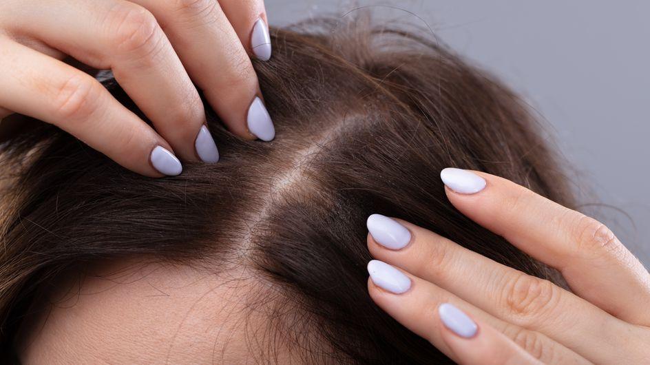 Cuoio capelluto secco: come fare per eliminare la secchezza