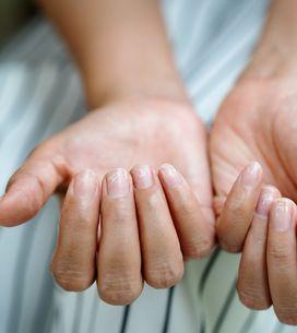 Unghie che si sfaldano: cause e rimedi per renderle forti