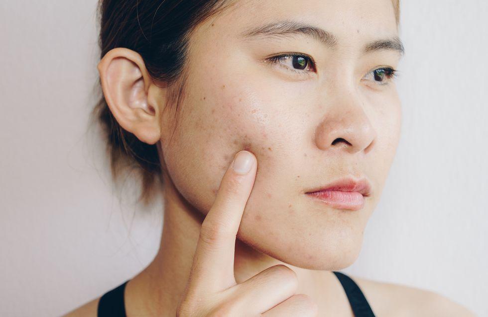 Komedonenquetscher: Mitesser entfernen wie ein Haut-Profi