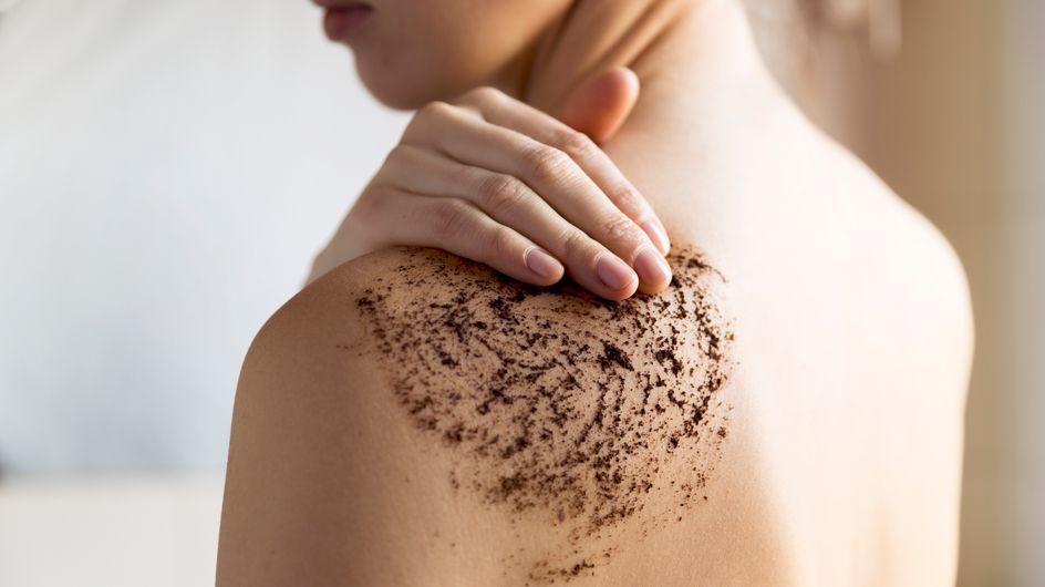 Points noirs dans le dos : comment s'en débarrasser ?