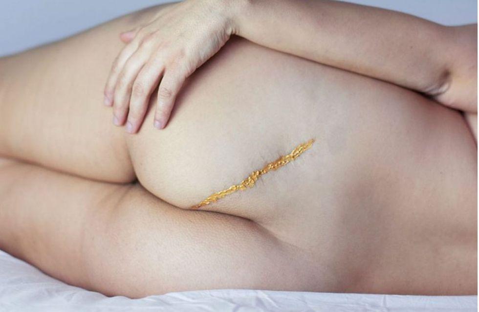 """Transformer la cicatrice d'un attentat en œuvre d'art : Marie Ployart explique la """"photo-thérapie"""""""