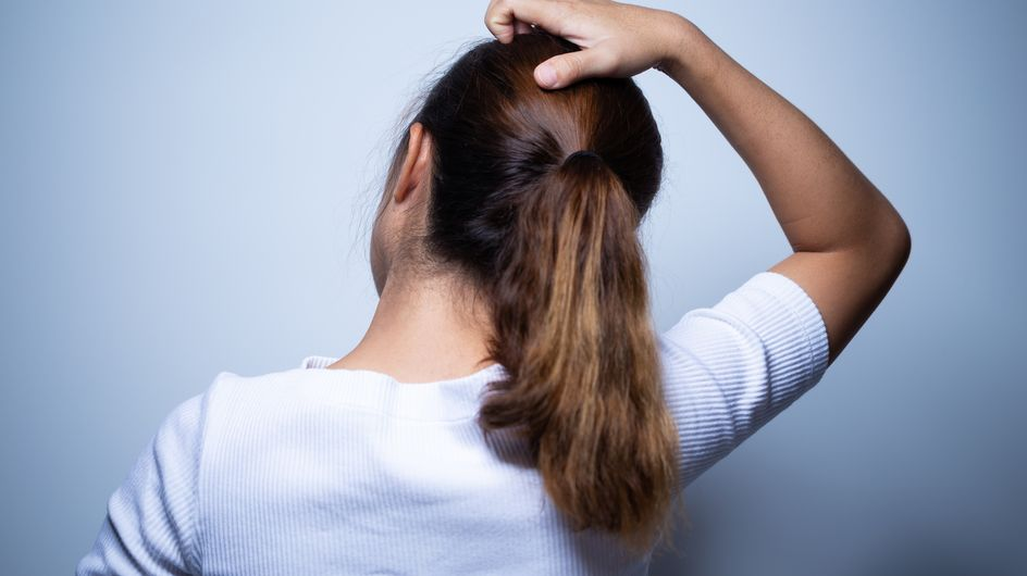 Cuoio capelluto irritato: rimedi per bruciore e prurito
