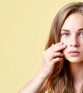 Acido salicilico viso: l'alleato per combattere efficacemente acne e brufoli