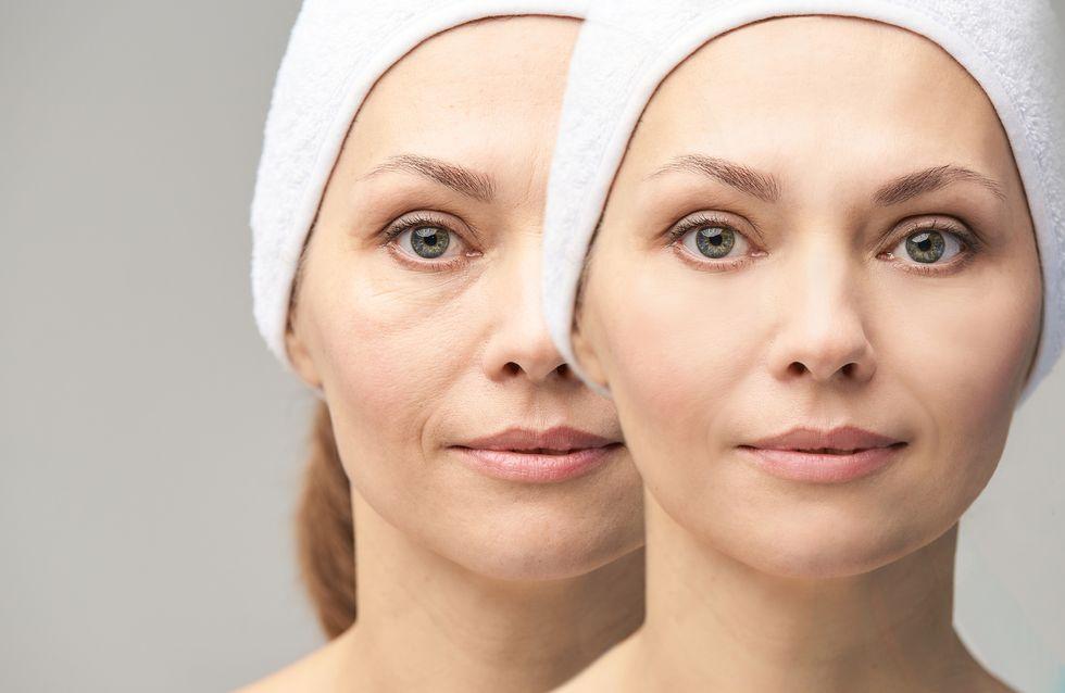 Rughe sotto gli occhi: ecco come eliminarle o ridurle