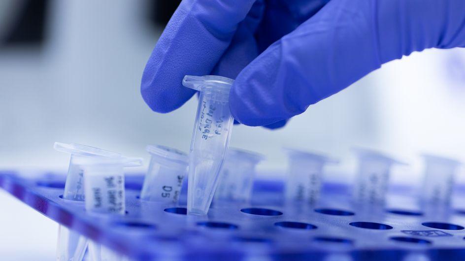 Covid-19: Neuer Urintest soll Krankheitsverlauf vorhersagen