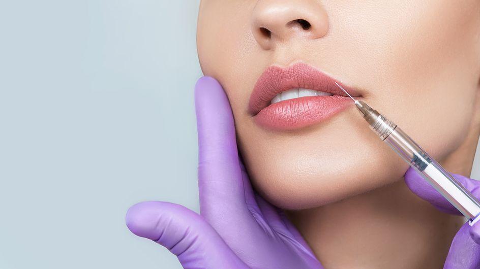 Filler labbra: tutto quello che c'è da sapere su questo trattamento