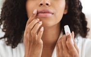 Lèvres gercées : nos astuces pour soigner les lèvres sèches et fendillées