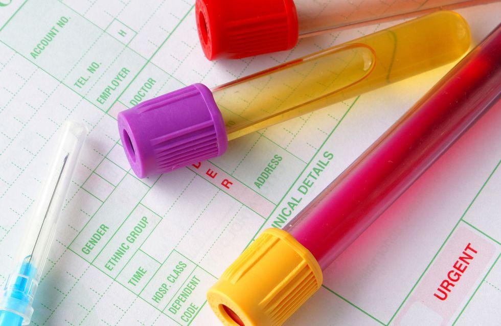 Come leggere l'emocromo: cosa significano veramente i singoli valori del sangue