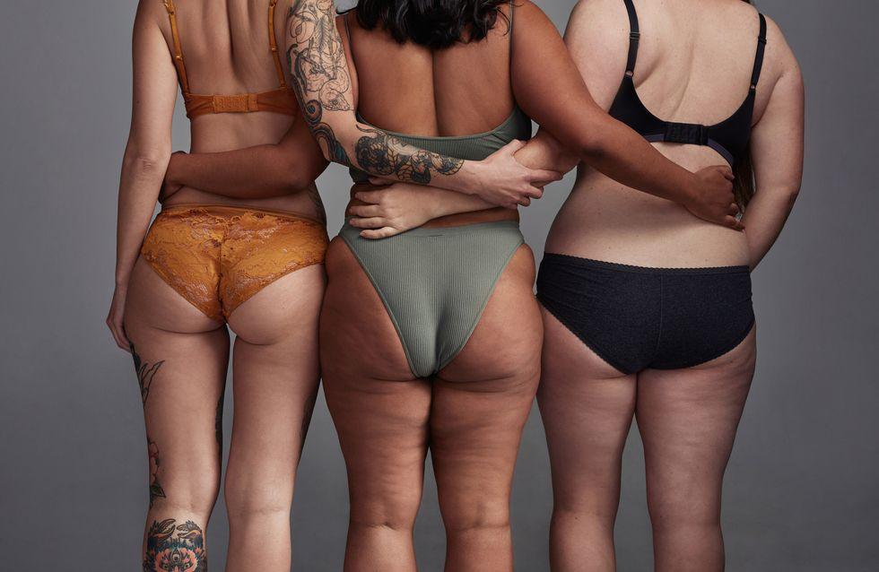 Orangenhaut: Viele Frauen haben Cellulite, doch was hilft?