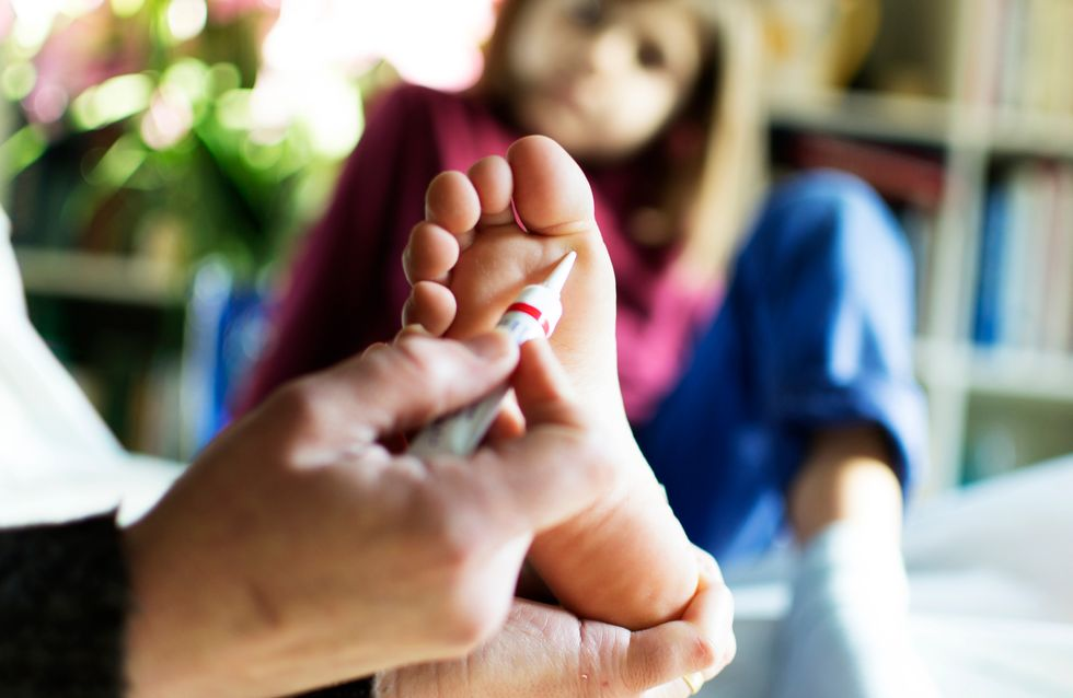 Verruche piedi bambini: formazioni sulla pelle virali e contagiose