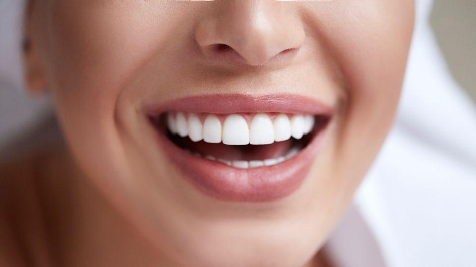 Facettes dentaires : faut-il vraiment se faire limer les dents pour la pose ?