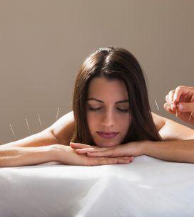 Agopuntura: una tecnica antica, ma molto discussa