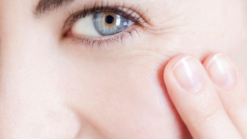 Rughe di espressione: i segni causati dalle abituali espressioni del tuo viso