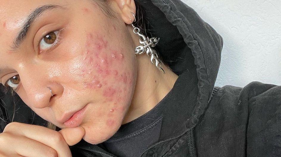 « L'acné est une souffrance, soyez indulgents ! »