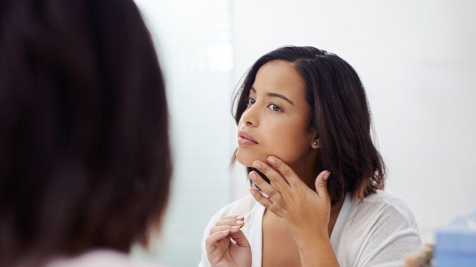 6 Gründe für schlechte Haut: Das steckt hinter Pickeln, Falten & Co.