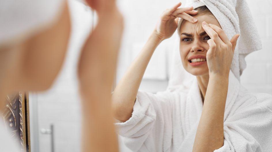 Brufoli da sole: prevenzione e rimedi contro l'acne estiva