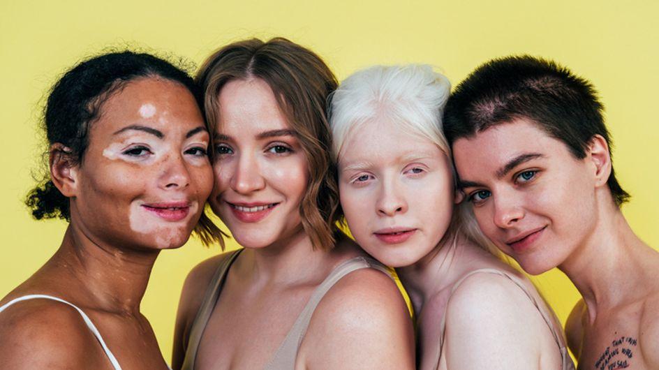 Persone albine: assenza o grave carenza di melanina