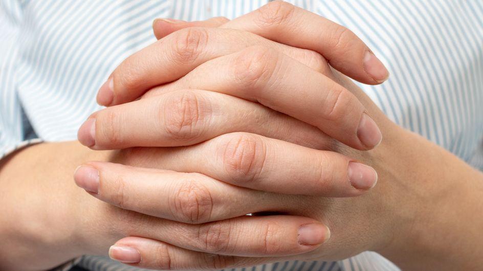 Macchie bianche sulle unghie: cosa sono, cause principali e come si trattano