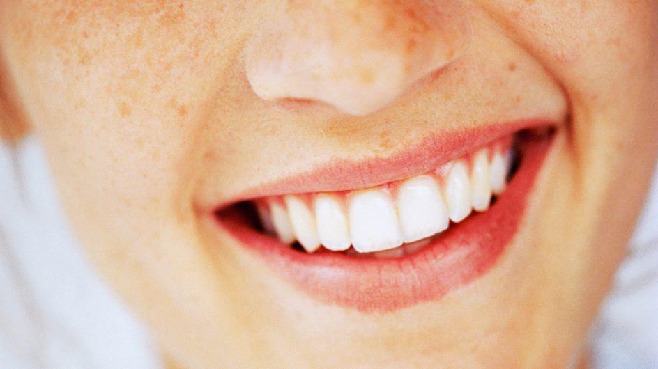 Come usare l'olio di cocco per sbiancare e pulire i denti