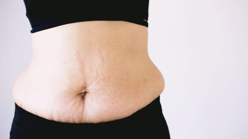 Pourquoi accepte-t-on le dad bod, mais pas les kilos post-grossesse d'une femme ?