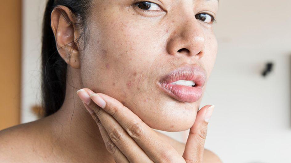 Macchie da brufoli: cause, rimedi e trattamento delle macchie rosse post brufolo su viso e corpo