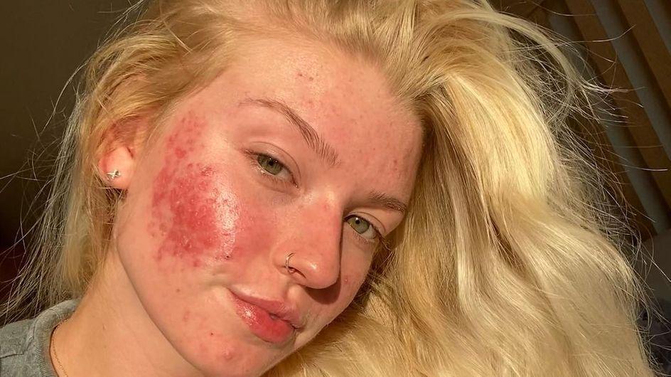 Cette star de TikTok atteinte d'acné kystique se confie sur les effets du Roaccutane