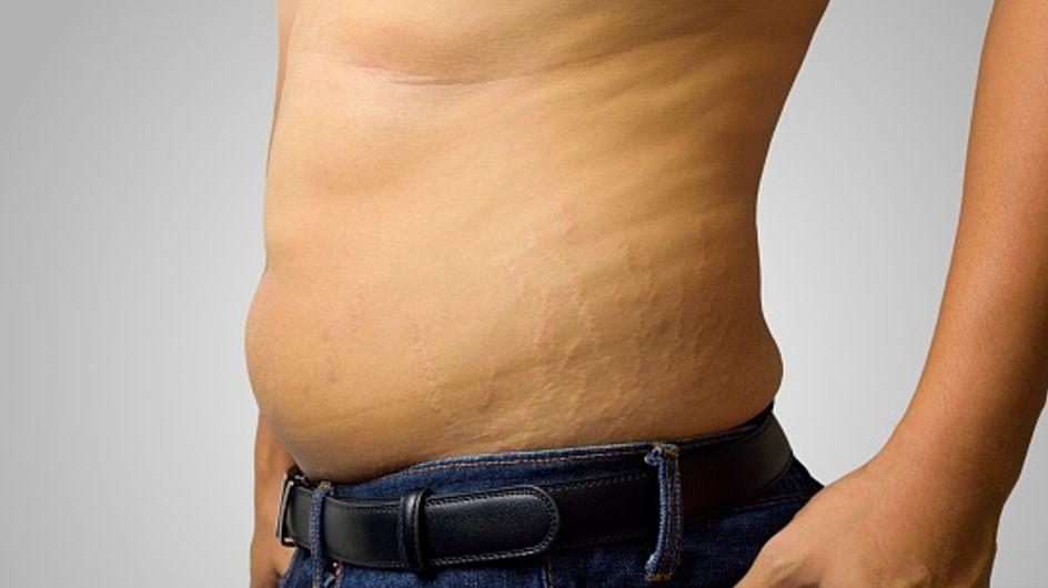 Smagliature uomo: come eliminare questo inestetismo dal corpo dell'uomo e perché questi segni fanno la loro comparsa sulla pelle