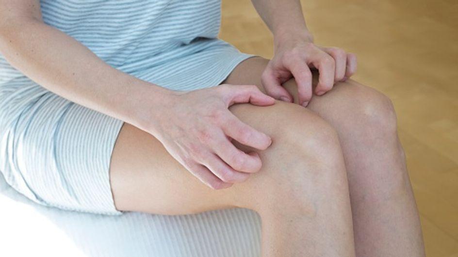 Prurito alle gambe: quando capita questo fastidioso disturbo che può anche coinvolgere altre parti del corpo