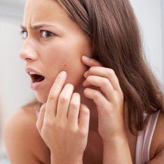 8 Tipps gegen Pickel: So werdet ihr die Störenfriede schnell wieder los!