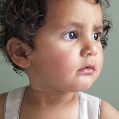Né sans nez ni yeux, un petit garçon subit une lourde opération pour avoir un nouveau visage (Vidéo)