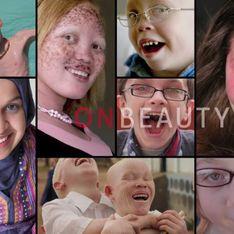 « On Beauty », le documentaire qui redéfinit la beauté (Vidéo)