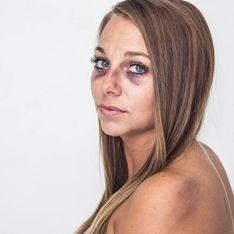 Diese Mutter zeigt ihre echten Verletzungen, um anderen Opfern häuslicher Gewalt zu helfen