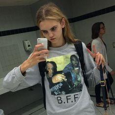 Molly Bair, l'ado de 18 ans devenue un modèle pour certaines anorexiques