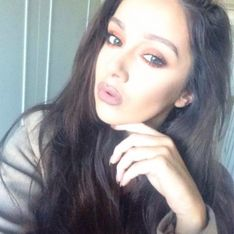 Une blogueuse dévoile ses lèvres ratées après des injections pour ressembler à Kylie Jenner (Photos)
