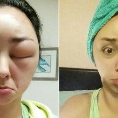 Diese junge Frau griff zum Haarfärbemittel - und sah danach SO aus!