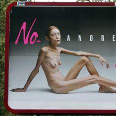 En France, la loi sur la maigreur des mannequins adoptée et la mention photo retouchée obligatoire