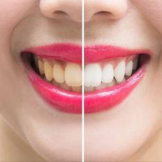 Wahr oder falsch? Diese zwei Dinge sollen deine Zähne in wenigen Minuten weißer machen!